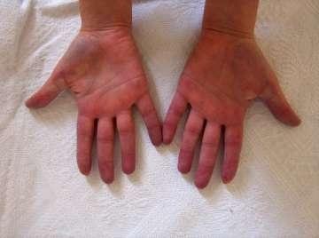 https www cuneytkoksoy com el parmaklarinin damar hastaliklari raynaud