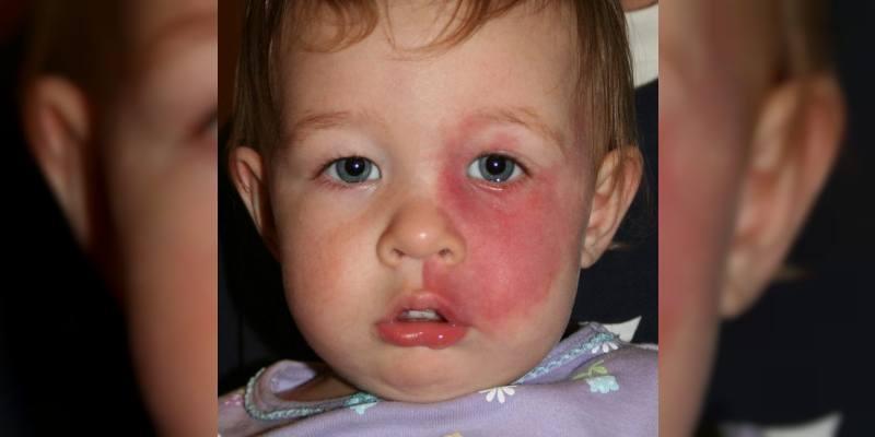 Doğuştan Damar Anomalileri (Damar Malformasyonları)