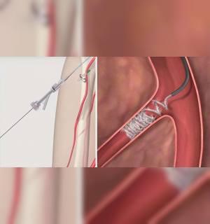 Embolizasyon (Tıkama Tedavisi)