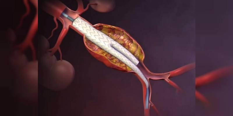 Endovasküler Anevrizma Onarımı (EVAR)
