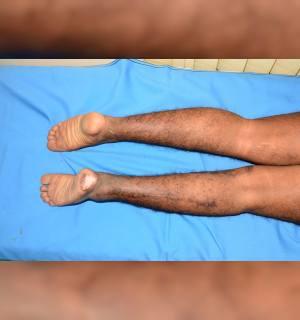 Popliteal Arter Tuzak/Kapan Sendromu