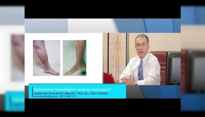 #projemedyapim #uzmanvideoları #doktor #sağlıkhakkında #damar #tedavi #hastane
